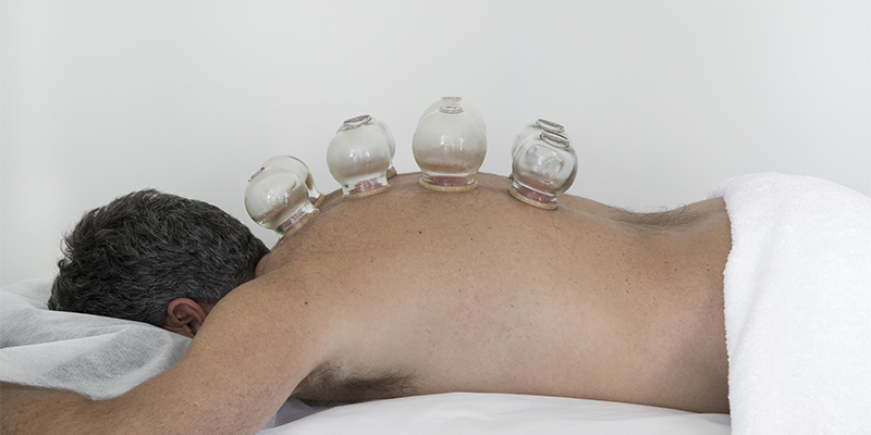 Cupping Technique on mans back
